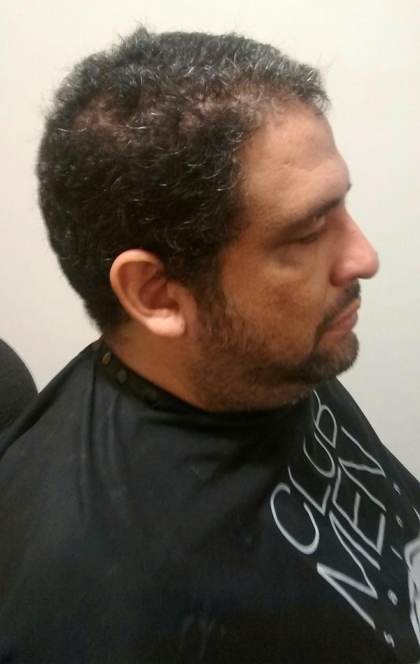 Antes - #antesdepois cabelo barbeiro(a)