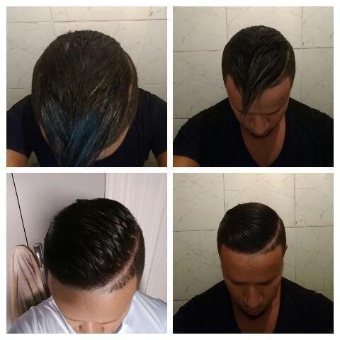 Semi definitiva cabelo auxiliar cabeleireiro(a)