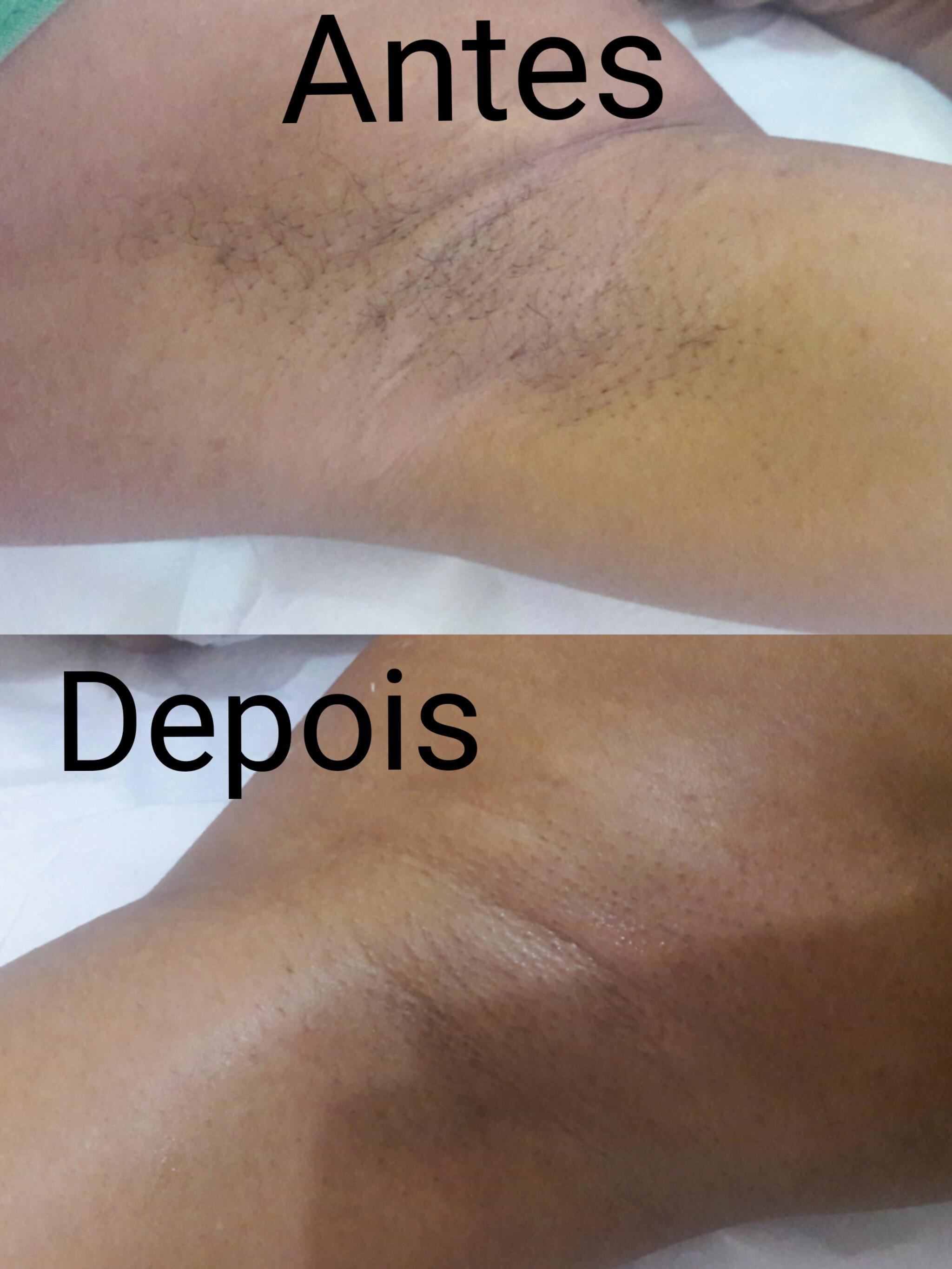 Depilação + argila branca = depilação perfeita sem manchar a pele outros estudante (depiladora) estudante (esteticista)