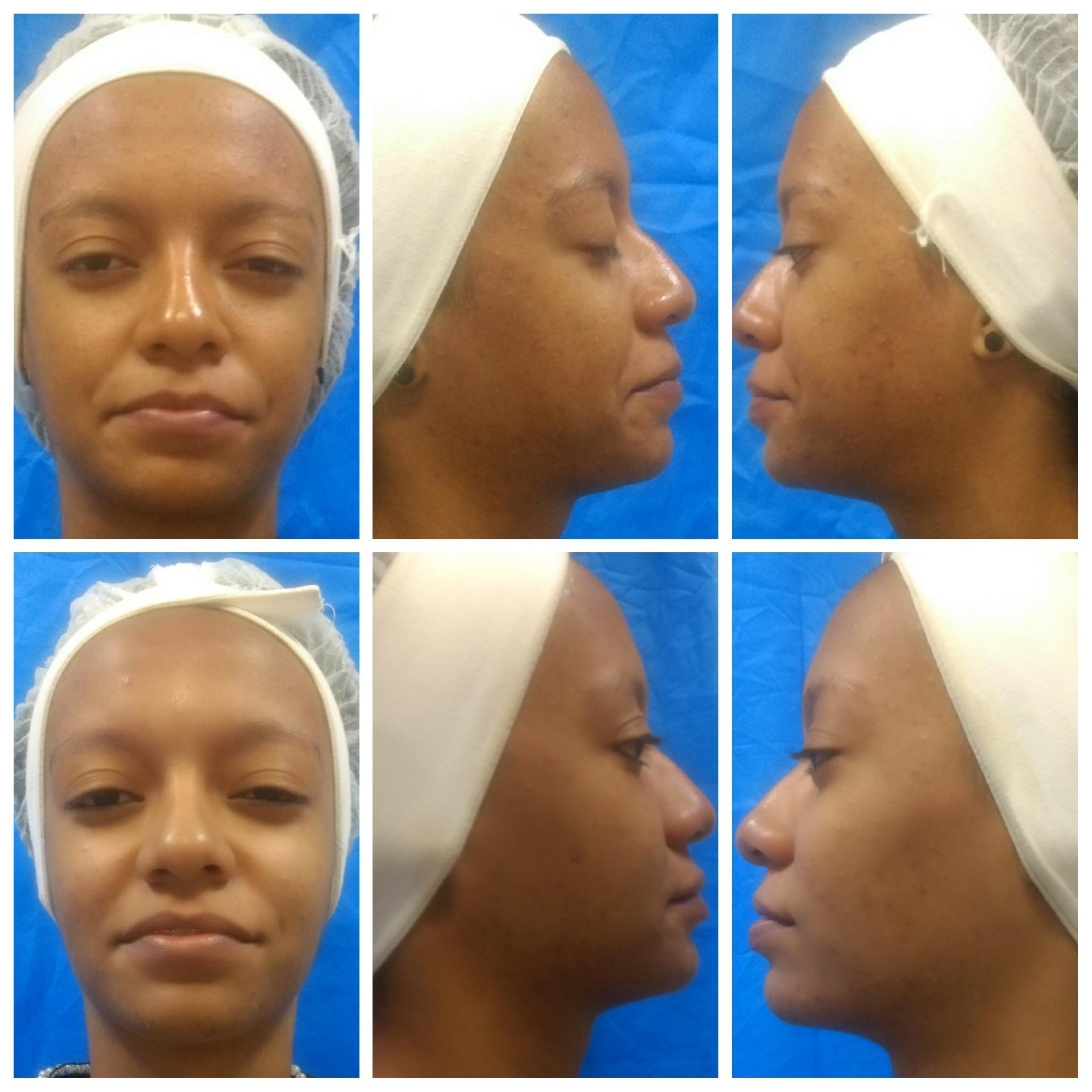 Tratamento de discromia, projeto realizado na faculdade. estética auxiliar cabeleireiro(a) estudante (esteticista)