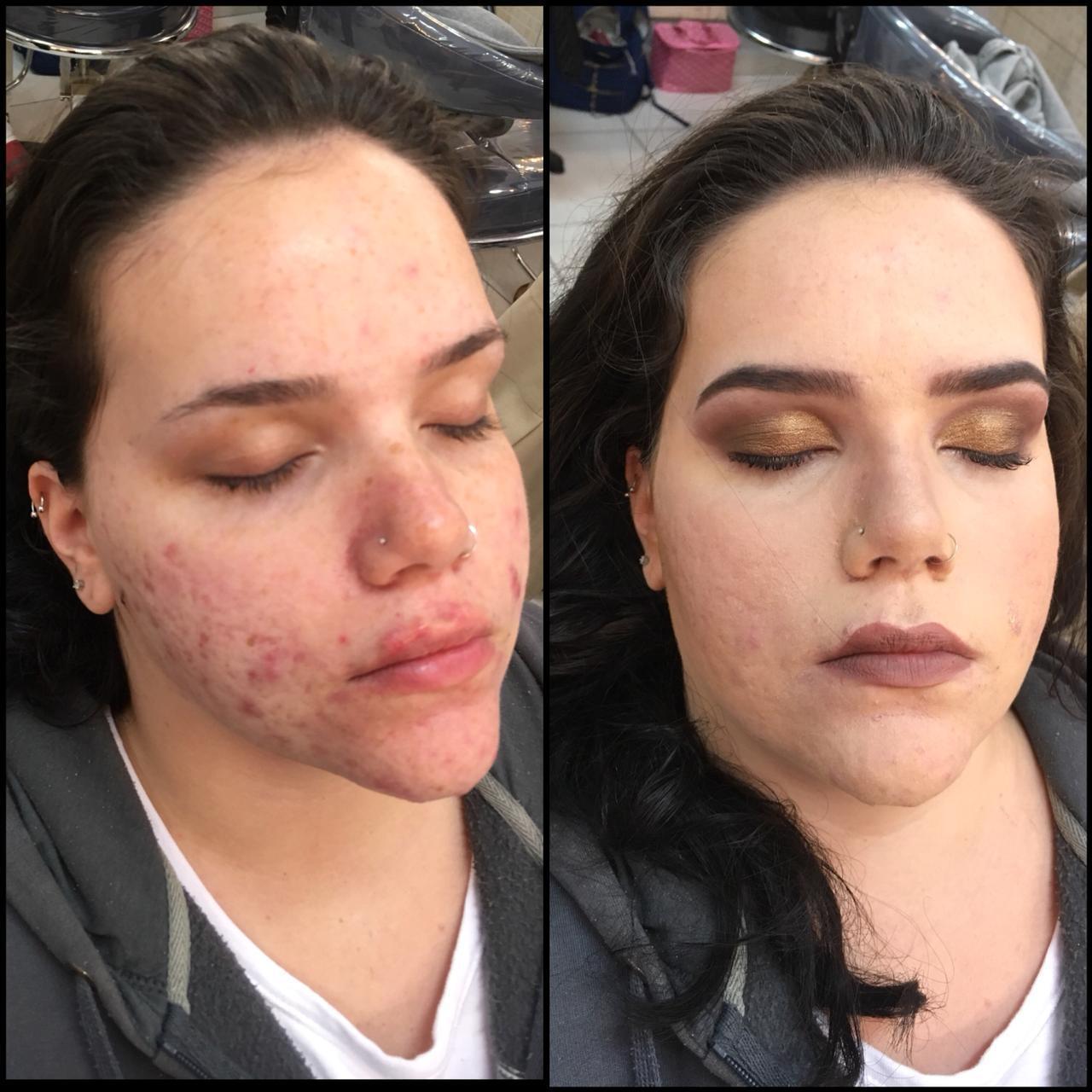 pele acneica antes e depois. maquiagem maquiador(a)