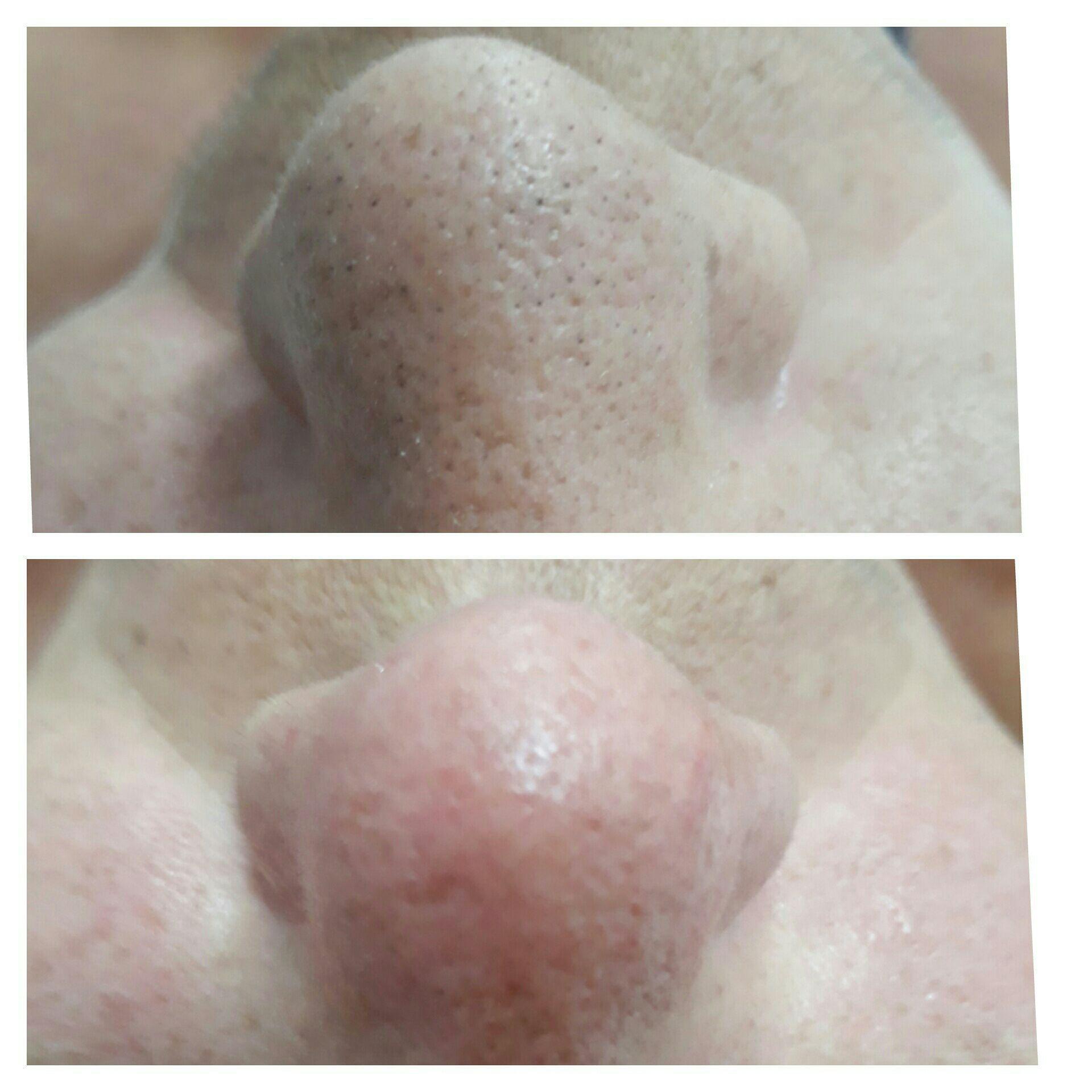 Limpeza de pele com extracao esteticista designer de sobrancelhas micropigmentador(a)