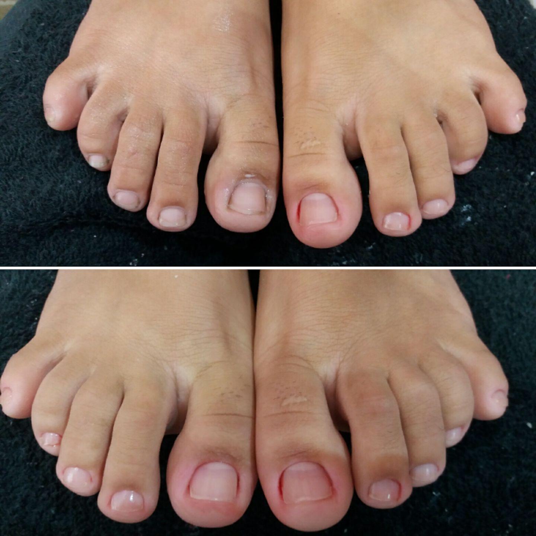 #AnteseDepois do pé. Cutilado e desencravado. unha manicure e pedicure