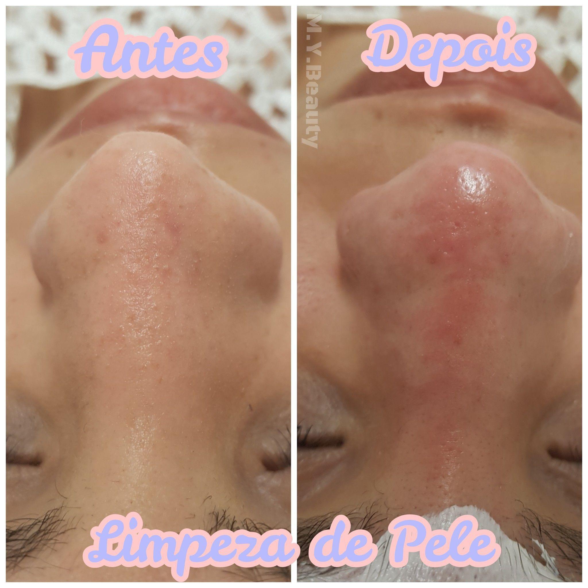 Limpeza de pele depilador(a) depilador(a) designer de sobrancelhas