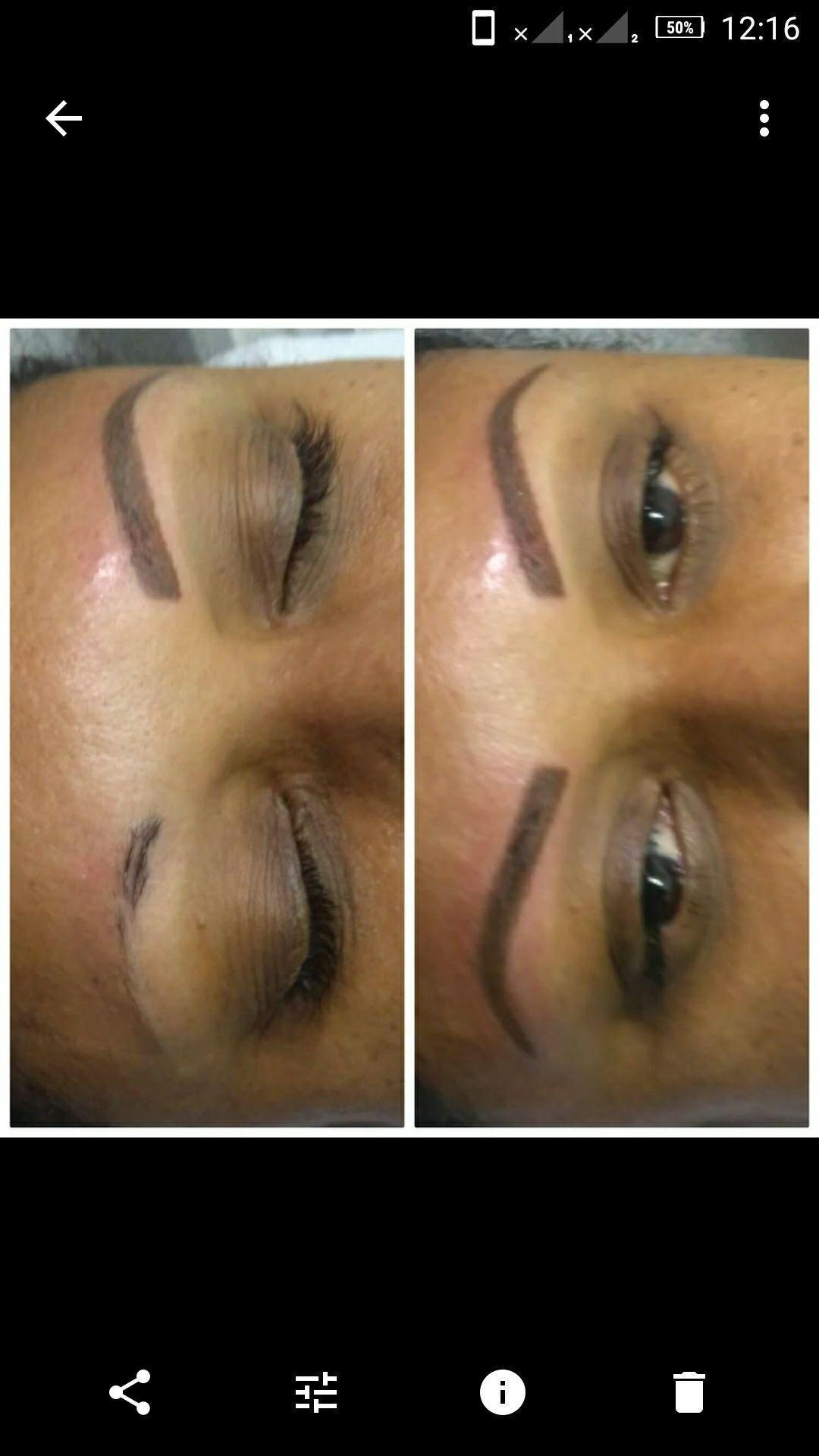 Micropigmentação realizada em Sobrancelhas com alopecia ( ausência de pêlos). dermopigmentador(a) designer de sobrancelhas esteticista dermopigmentador(a)