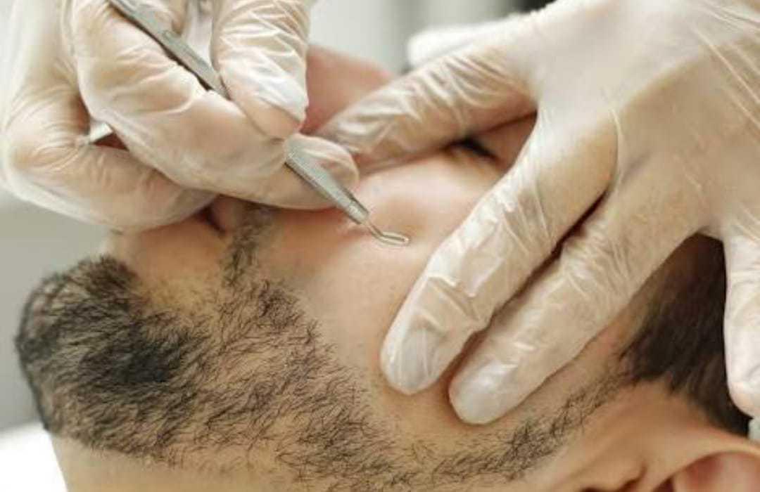 Limpeza de Pele Profunda com Peeling de diamante Remoção de cravos e espinhas.  estética depilador(a) esteticista
