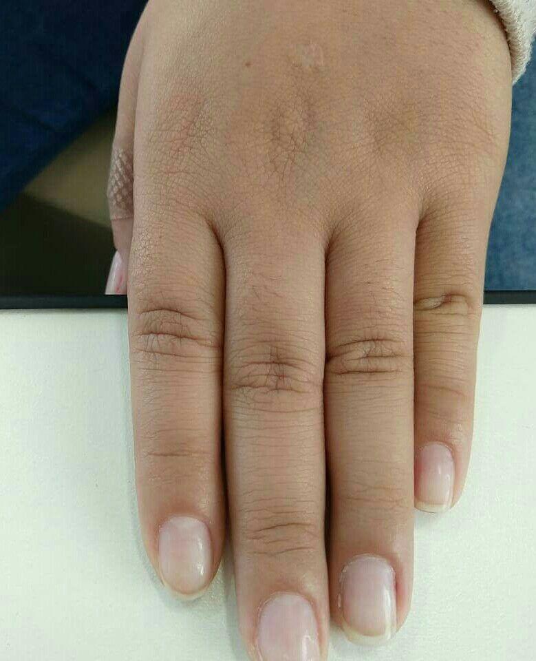 Antes alongamento fibra de vidro unha podólogo(a) manicure e pedicure