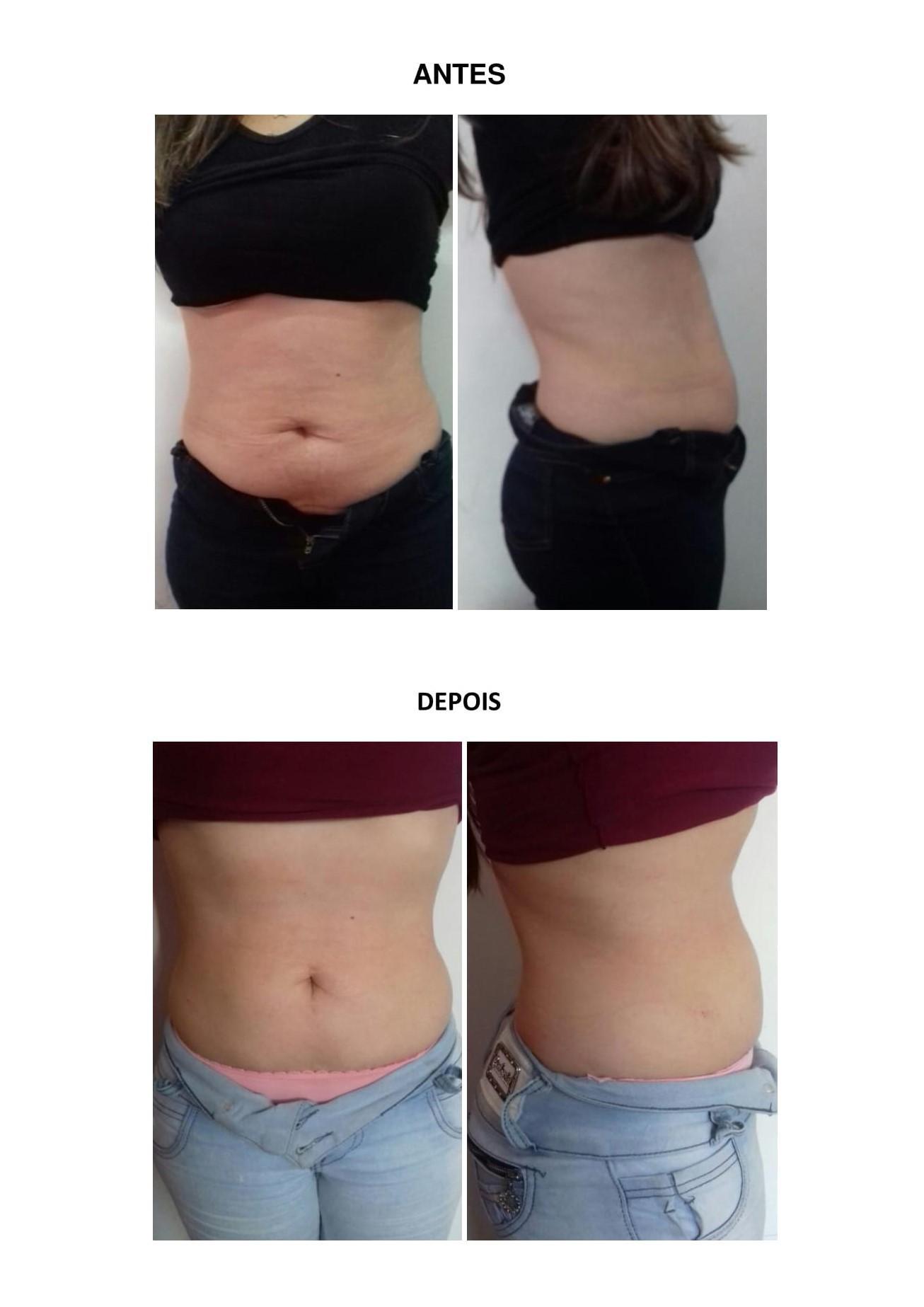 Tratamento para gordura localizada na região abdominal estética esteticista