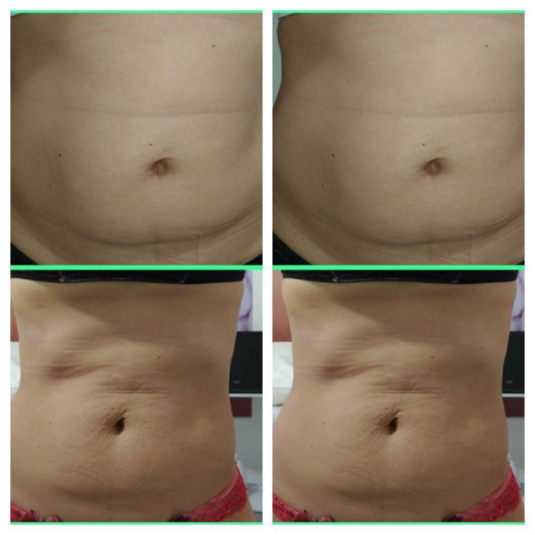 Massagem Modeladora/Tratamento Redutor de Gorduras. Antes/Depois de 20 sessões! estética esteticista massoterapeuta designer de sobrancelhas