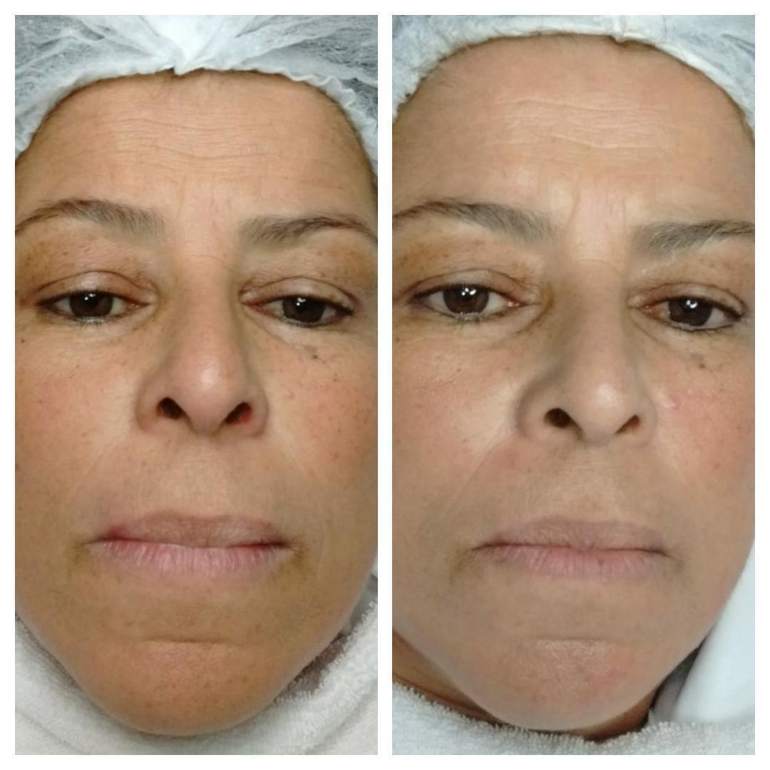 Limpeza de Pele com extração de Milliuns! estética esteticista massoterapeuta designer de sobrancelhas