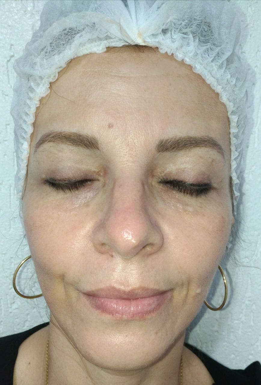 Tratamento com ácidos para remoção de melasmas... estética esteticista massoterapeuta designer de sobrancelhas