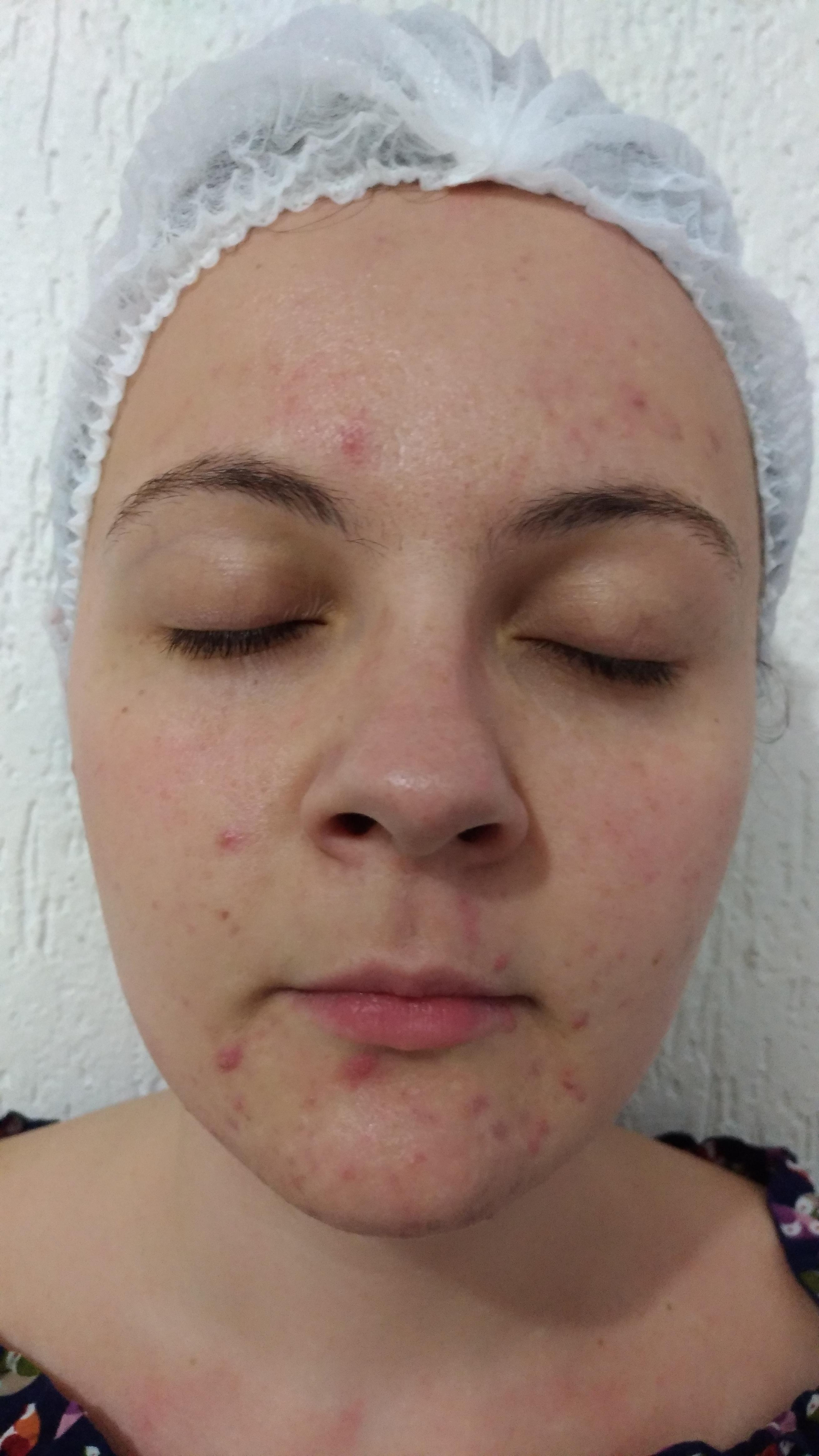 Tratamento Facial Pele Acneica! Antes.. estética esteticista massoterapeuta designer de sobrancelhas