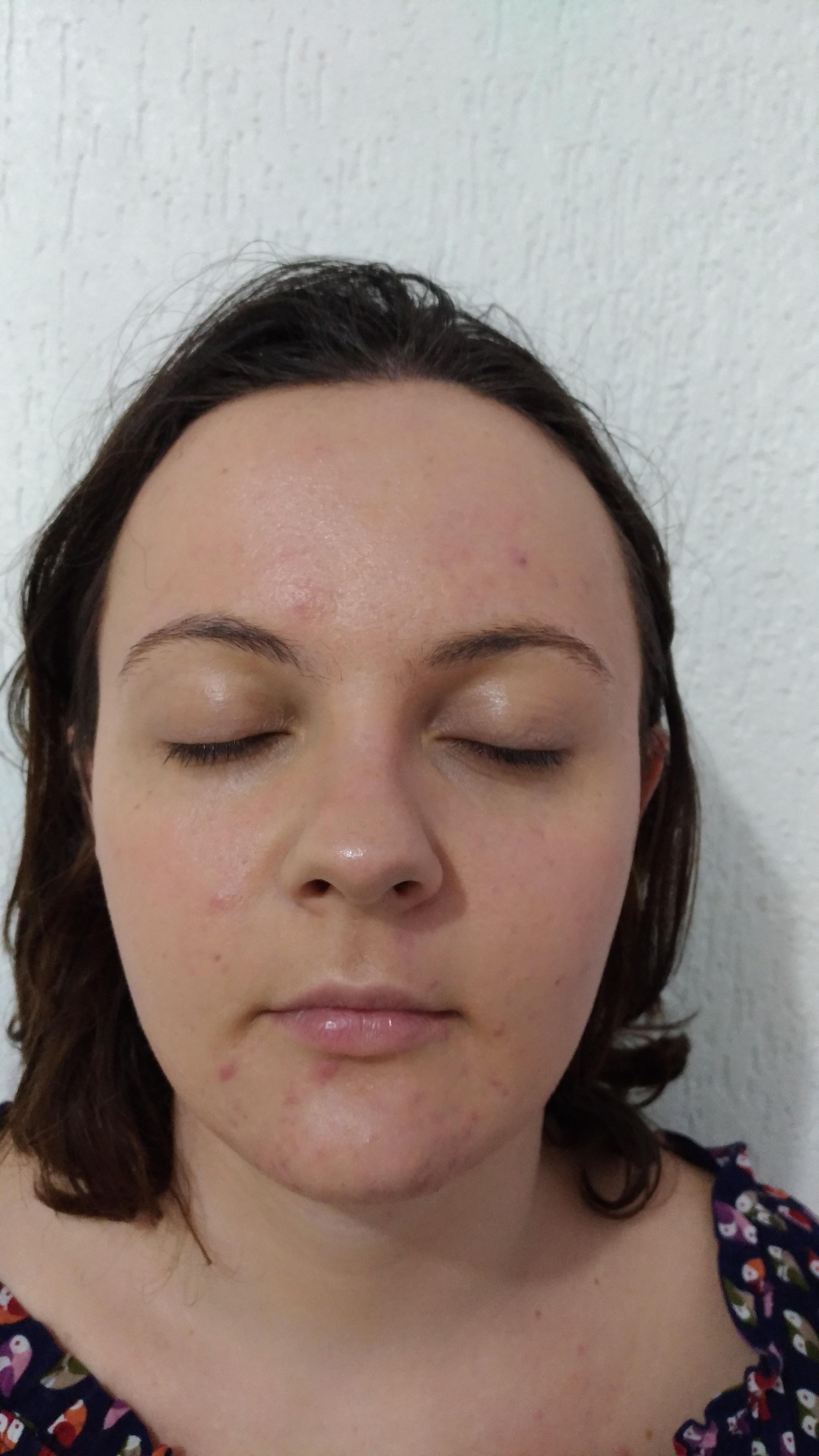Primeira sessão Tratamento Facial contra Acne...Depois! estética esteticista massoterapeuta designer de sobrancelhas