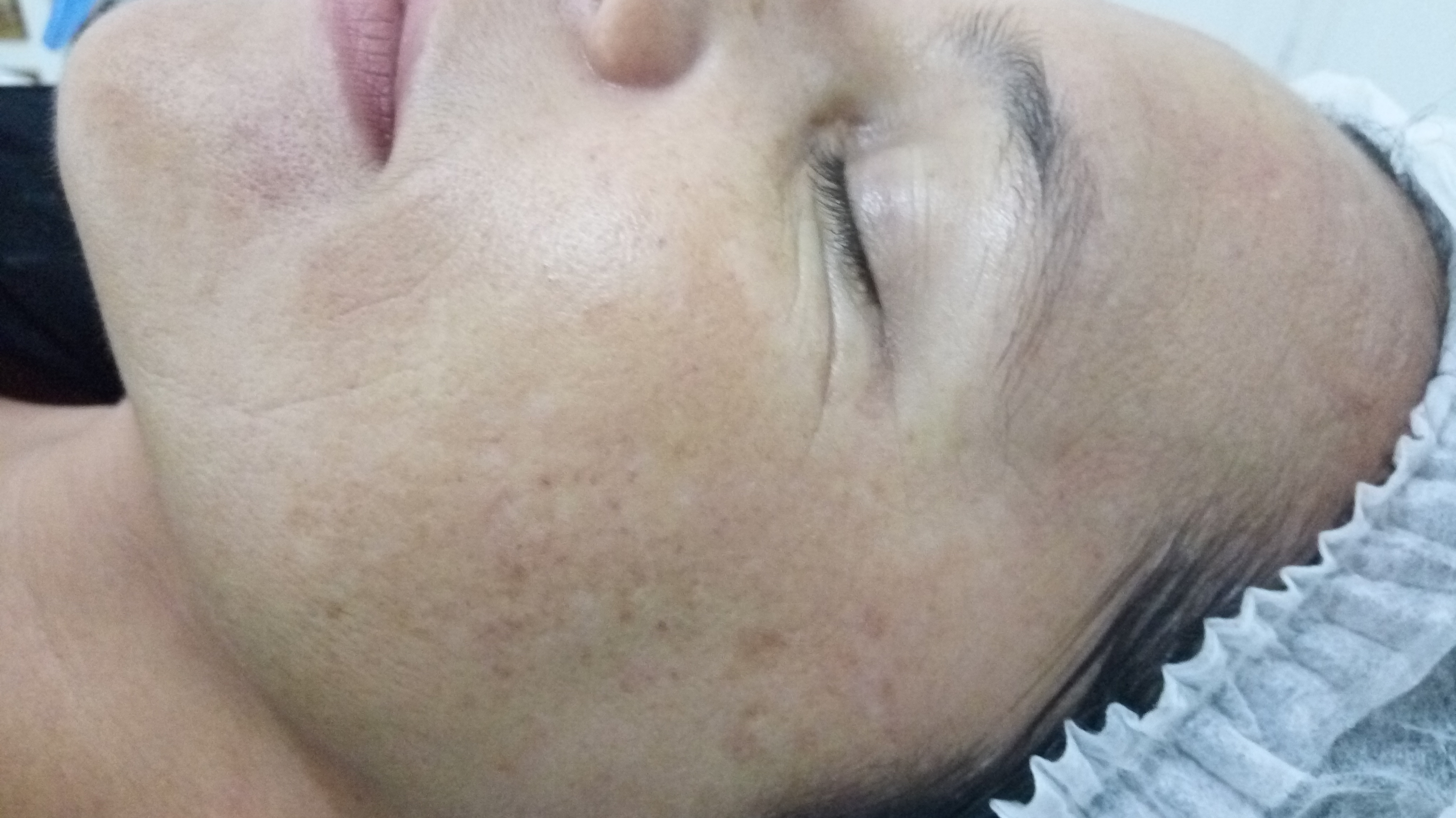 Foto depois do tratamento ! estética esteticista