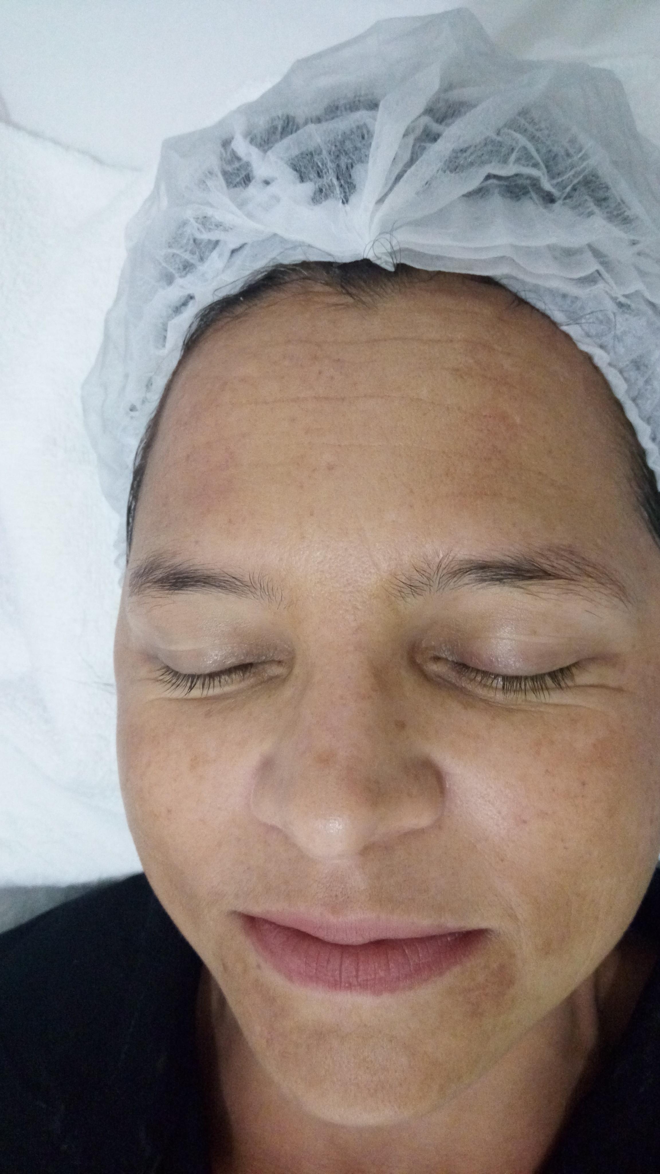Depois do tratamento  estética esteticista