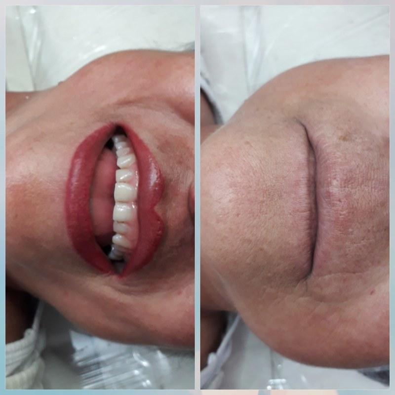 Revitalização labial  micropigmentador(a) cabeleireiro(a) outros