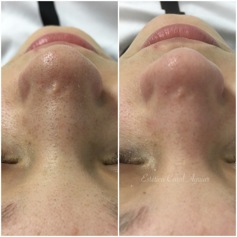 Limpeza de pele  estética esteticista designer de sobrancelhas depilador(a)