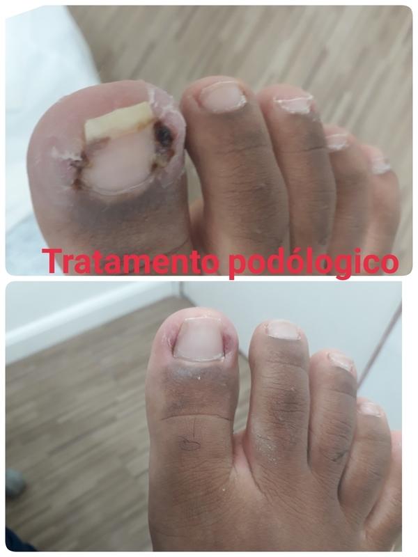 Tratamento de infecção  unilateral , foi retirado lateralmente a espicula, e depois e frito o curativo Retorno dentro de 15 dias.    unha podólogo(a)