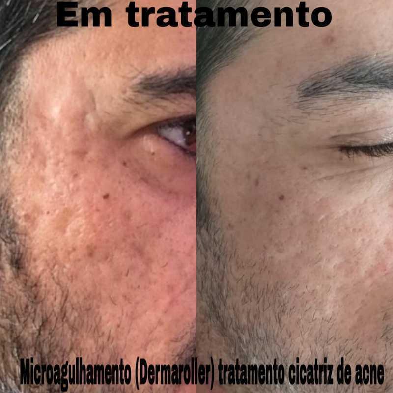 Microagulhamento antes e depois 1°sessão (tratamento para cicatrizes de acne).  #pelesaudavel #sppompeia #microagulhamento #dermaroller  estética esteticista