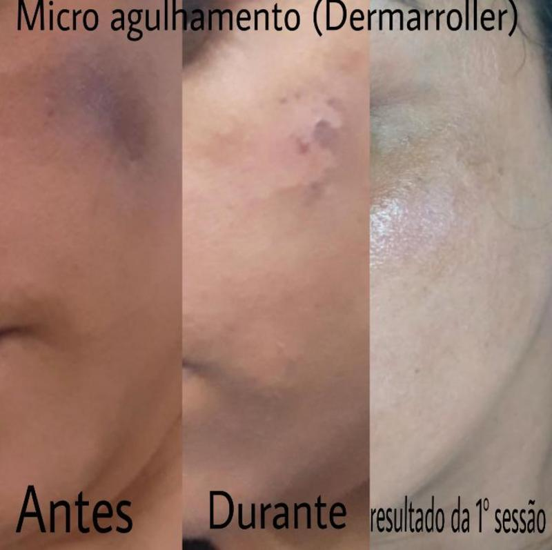 Microagulhamento  (dermaroller) tratamento  para melasma .   #pelesaudável #pelesemmanchas  #microagulhamento #dermaroller  #sppompeia #barrafunda   estética esteticista