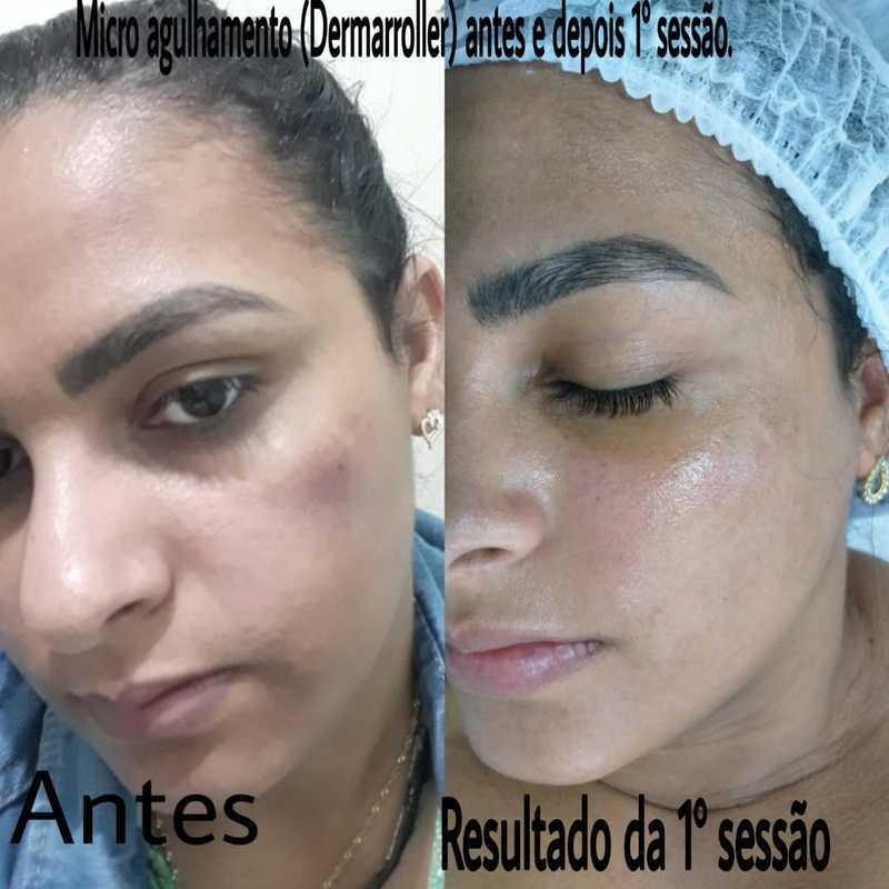 Microagulhamento (dermaroller) tratamento para melasma.   #pelesaudavel #cuidadoscomapele #tratamentoparamelasma #microagulhamento #dermaroller #sppompeia #barrafunda #sp estética esteticista