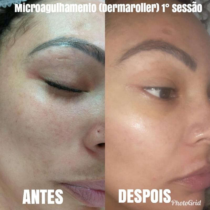 Microagulhamento (dermaroller) tratamento para melasma.    #pelesemmelasma #cuidadocomapele #pelesaudavel #sppompeia #barrafunda estética esteticista