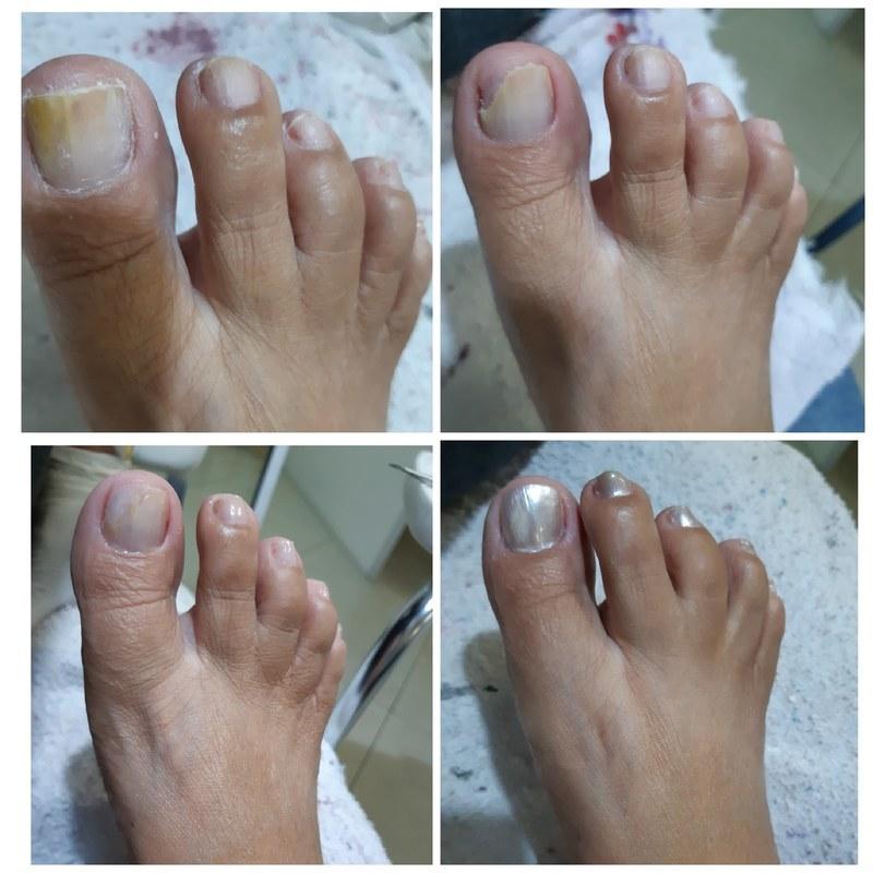 Reconstrução da unha . unha manicure e pedicure
