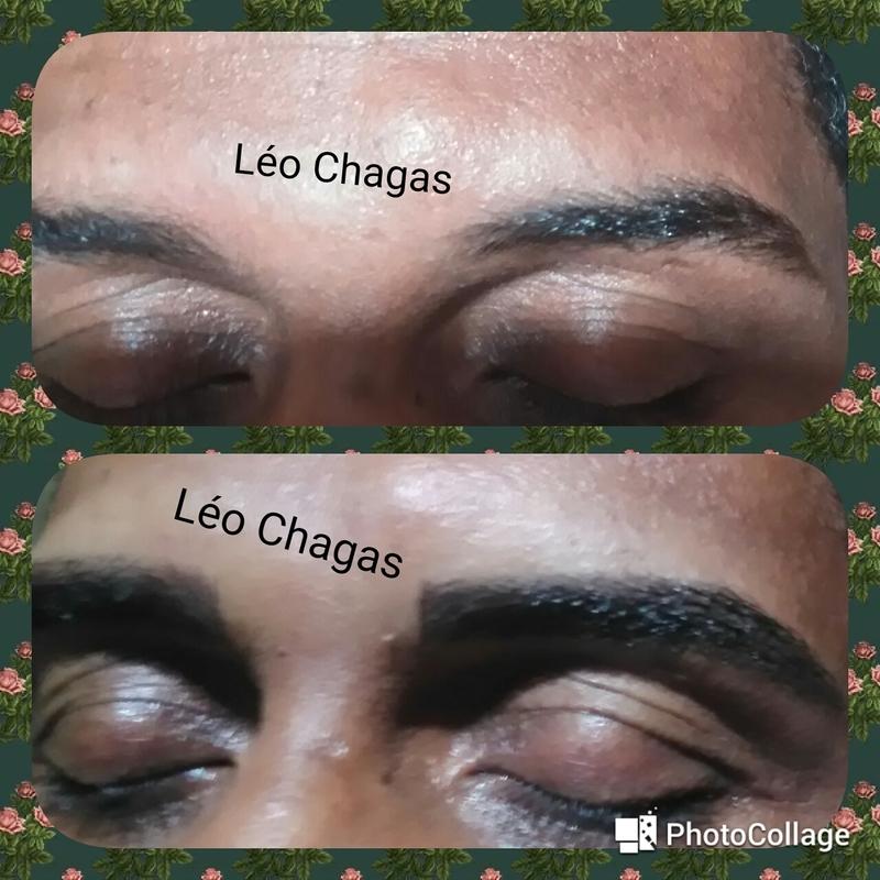Micropigmentação   outros