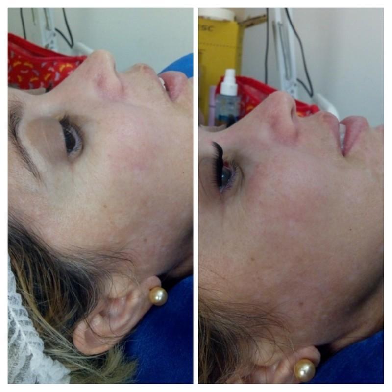 Extensão de cílios tufinho  estética biomédico(a) esteticista
