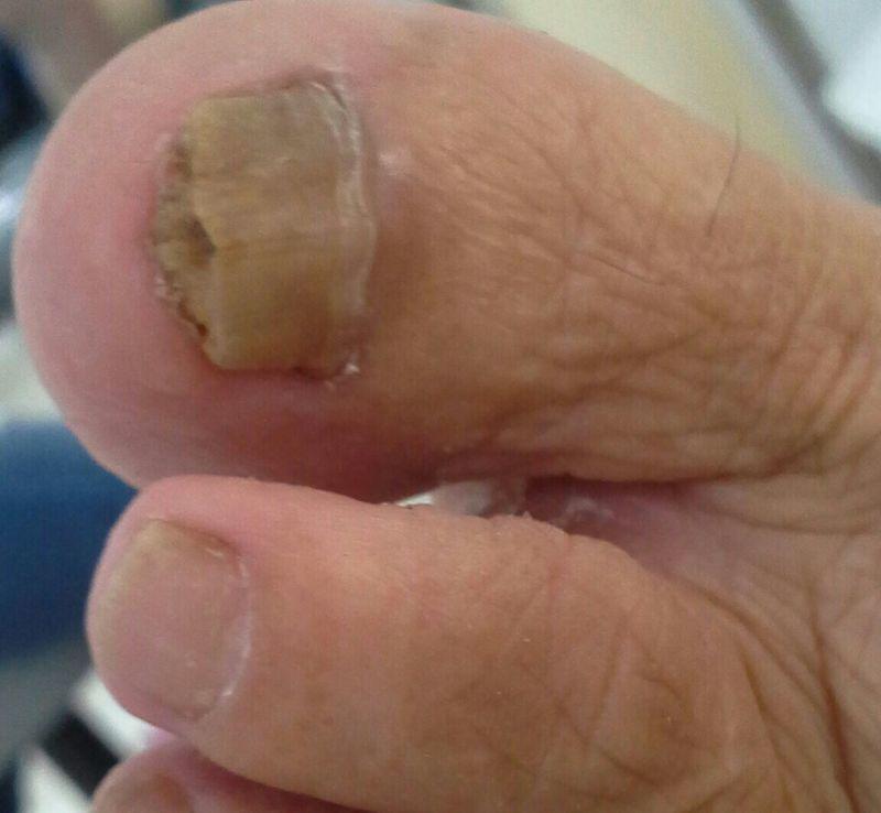 manicure e pedicure podólogo(a)