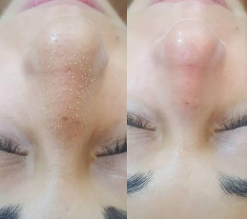 Promoção limpeza  de pele  valor 35,00 Atendimento  a domicílio  Agendamentos  976609620 estética esteticista