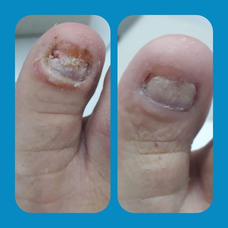 Venha cuidar  com carinho dos seus pés podologa Jaqueline Souza pés Saudaves  recuperação e tratamento da unha  distrofica por trauma outros manicure e pedicure podólogo(a)