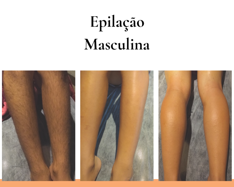 Epilação Masculina com Cera Rollon Tutti Depil estética estudante (esteticista) depilador(a)
