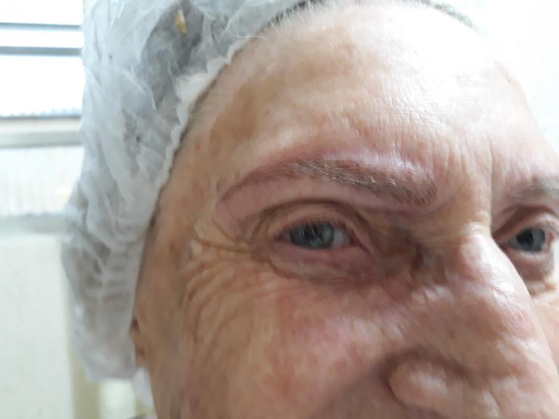 Micropgmentação fio a fio, esta cliente não tinha quase nada de pêlos.  dermopigmentador(a) designer de sobrancelhas cabeleireiro(a) naturólogo(a)