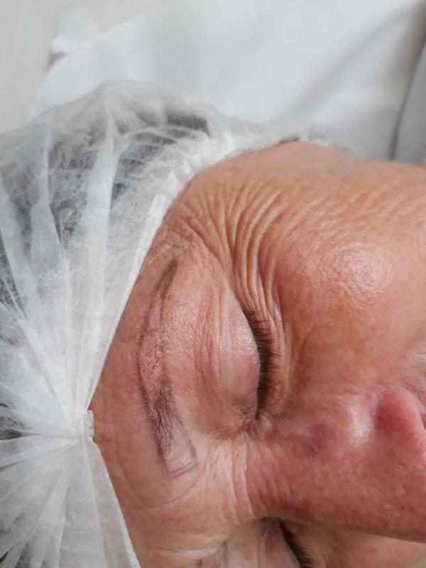 Esta cliente saiu de uma quimioterapia e perdeu parte dos pêlos.  Aqui temos o antes para melhor visualizar , logo abaixo temos o trabalho realizado. dermopigmentador(a) designer de sobrancelhas cabeleireiro(a) naturólogo(a)