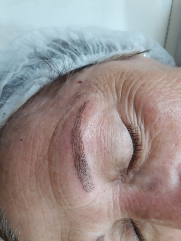 O trabalho realizado. Microblanding fio a fio. Na foto acima o antes onde vemos  a cliente com poucos fios devido ao tratamento de uma quimioterapia.  Cliente feliz! dermopigmentador(a) designer de sobrancelhas cabeleireiro(a) naturólogo(a)