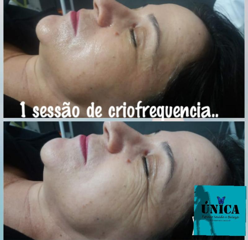 radiofrequência  com associações  de tratamento  de rejuvenescimento,resultado top esteticista maquiador(a) massoterapeuta