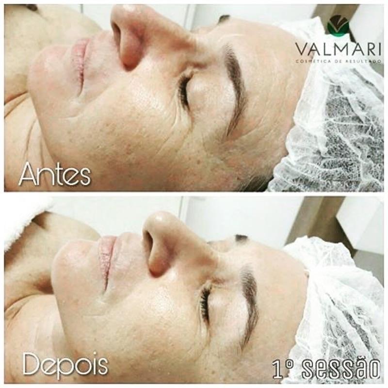 Protocolo HYALUROGENESIS Valmari rejuvenescimento facial  estética esteticista