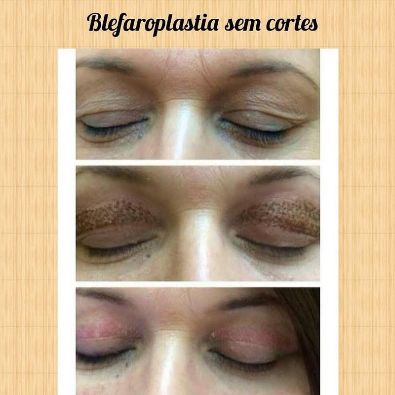 Blefaroplastia sem cortes levantamento de pálpebras estética dermopigmentador(a) designer de sobrancelhas