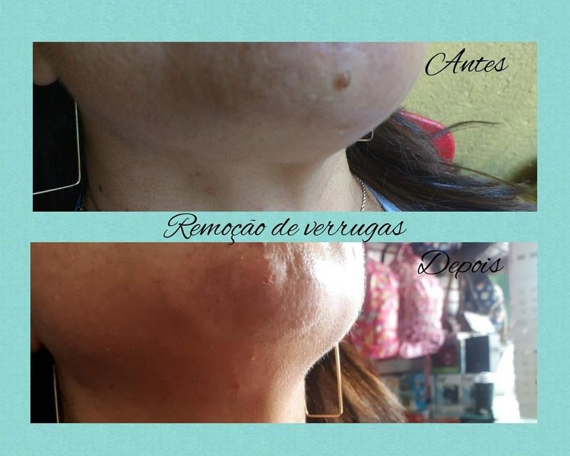 Remoção de verrugas dermopigmentador(a) designer de sobrancelhas