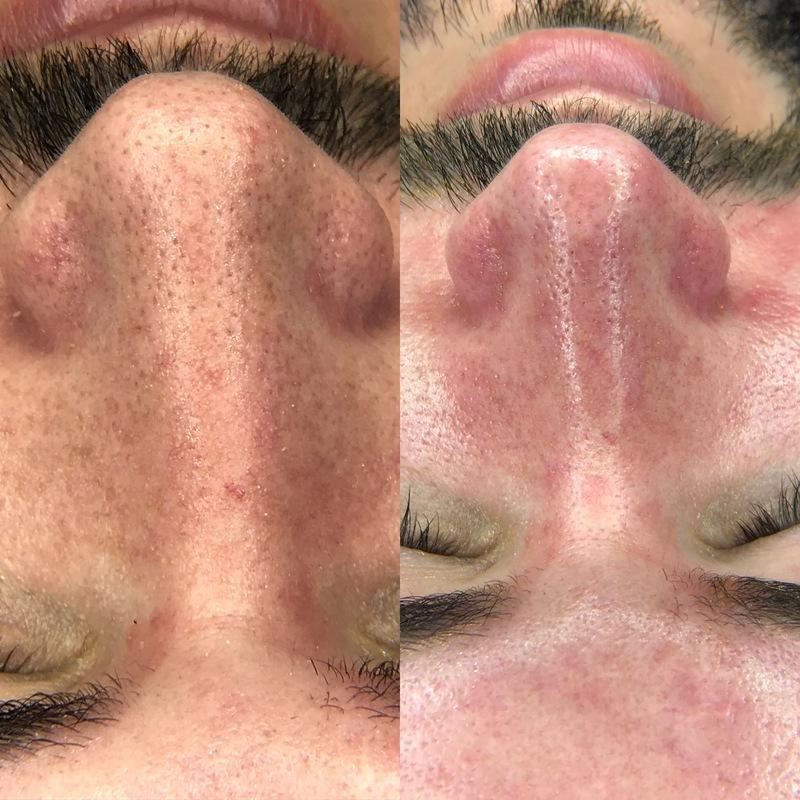 Limpeza de pele  estética cabeleireiro(a)