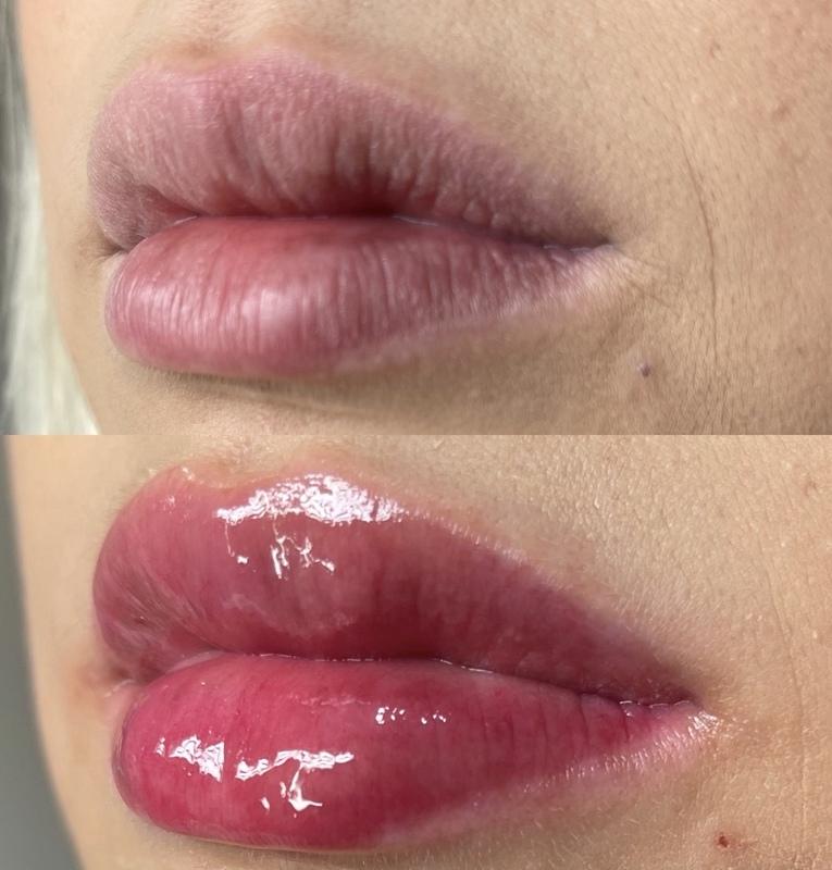 Glow lip, tratamento que restaura e hidrata a mucosa dos lábios. estética designer de sobrancelhas
